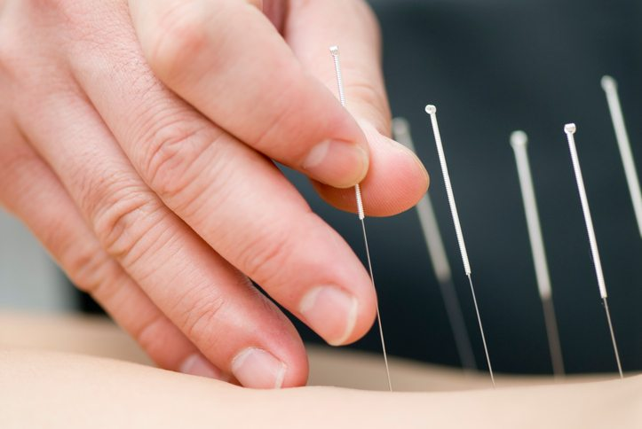 Benefits of Dry Needling for Pain Relief